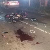Broken leg and fractured facial bones due to head-on car and scooter accident