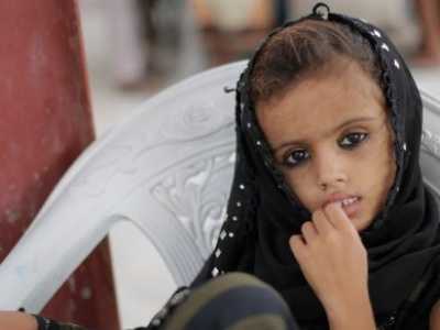 Yemen: Tackling the world's largest humanitarian crisis