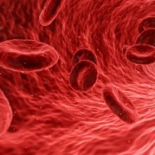 June 19 is World Sickle Cell Day